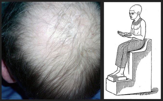An image showing Alopecia and Imhotep for CPDGC's Autumn meeting 2013
